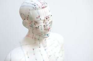 8 of the Best Health Benefits of Acupuncture