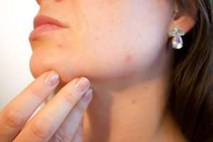 Get Clearer Skin: 13 Supplements for Acne