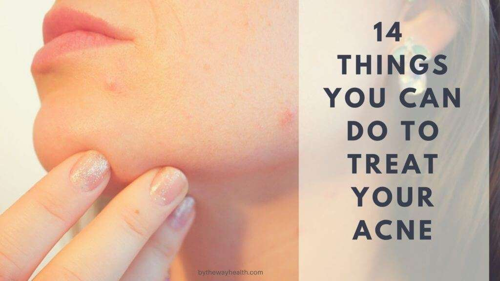 14 THINGS YOU CAN DO TO TREAT YOUR ACNE